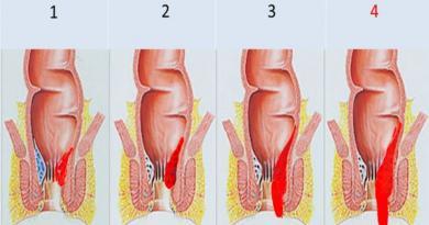 cetiri-stadija-hemoroidalne-bolesti