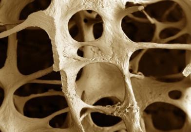 Kako se liječi osteoporoza