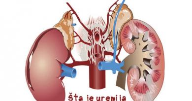 simptomi_bolesti_bubrega